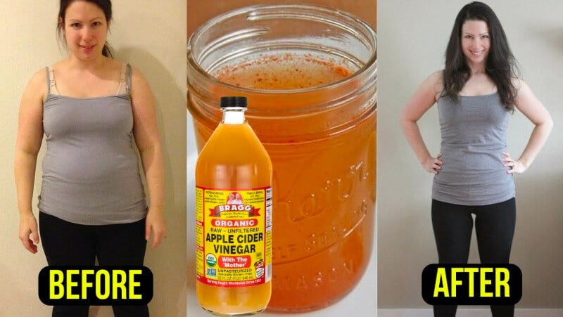 apple cider vinegar weight loss results before and after
