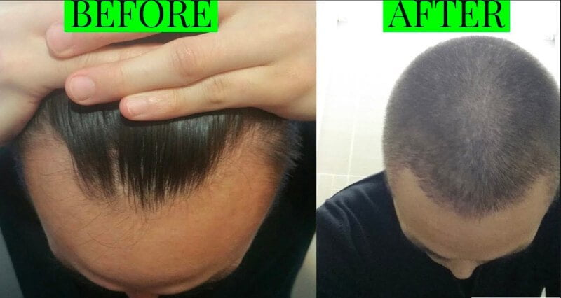Propecia before and after