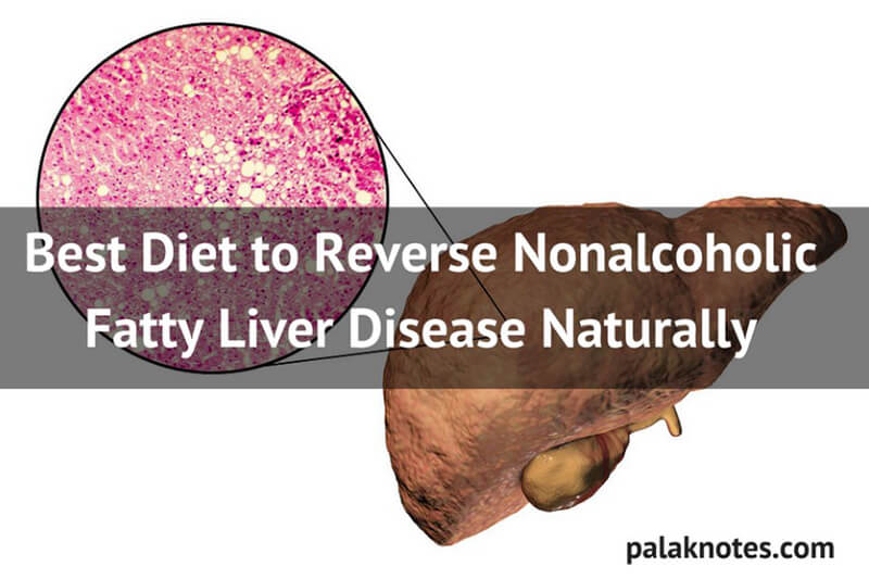 4 Proven Ways to Cure Fatty Liver Disease