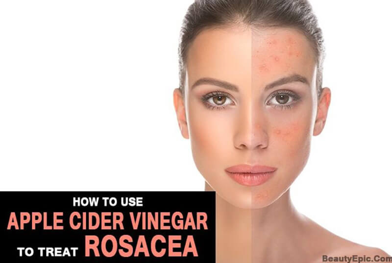Apple Cider Vinegar For Rosacea