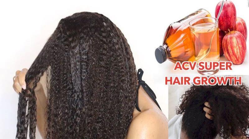 Apple cider vinegar for hair growth