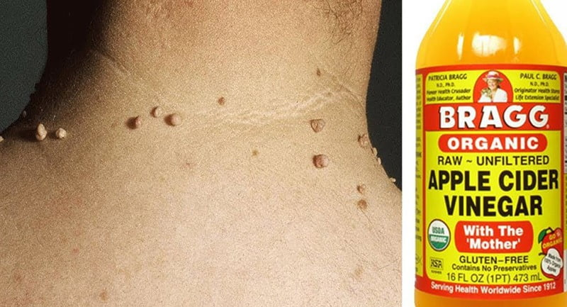 How To Use Apple Cider Vinegar For Skin Tags?