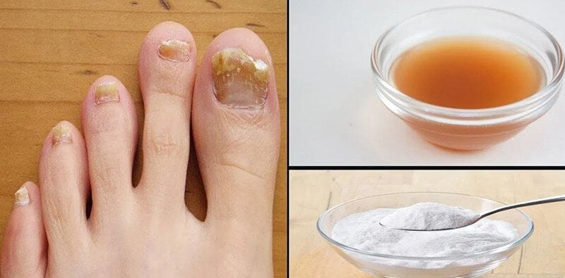 Apple cider vinegar for toenail fungus