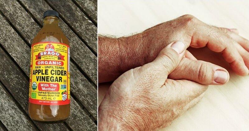 Can apple cider vinegar help with arthritis
