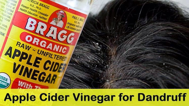 Can apple cider vinegarassist treat dandruff