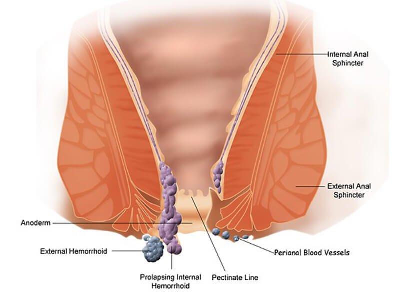 Hemorrhoid basics