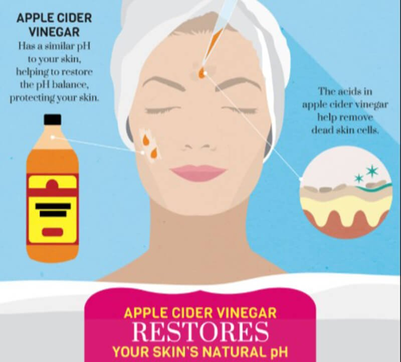 How To Utilize Apple Cider Vinegar For Cystic Acne