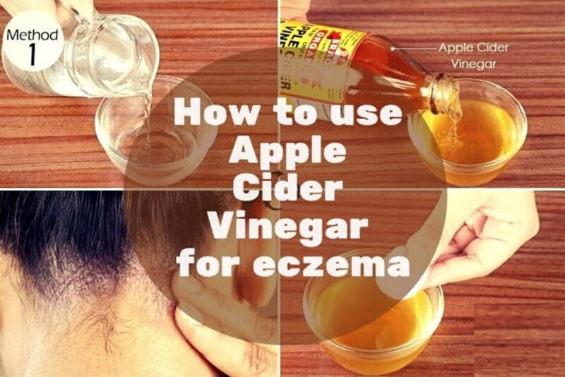 How can I utilize ACV within my skincare regimen