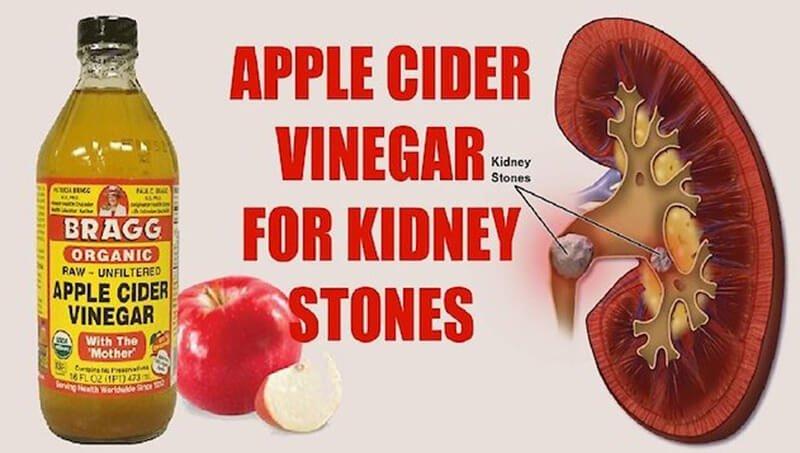 How can apple cider vinegar help