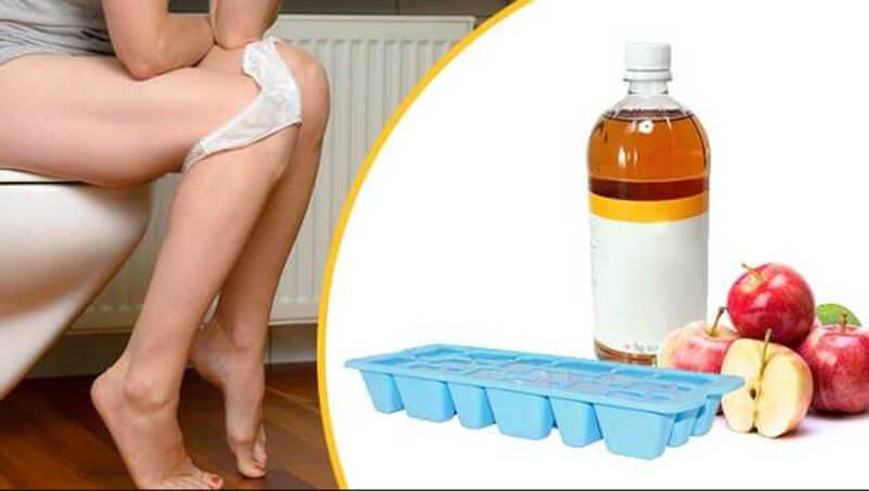 How to Utilize Apple Cider Vinegar for Hemorrhoids