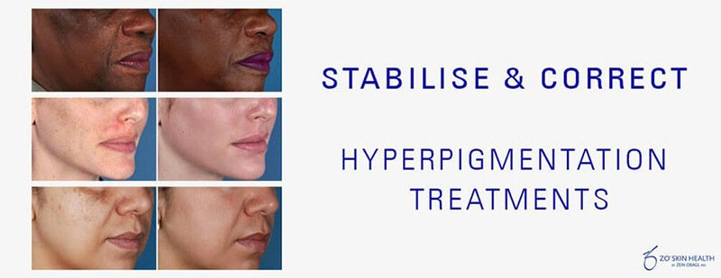 Medical hyperpigmentation Therapy