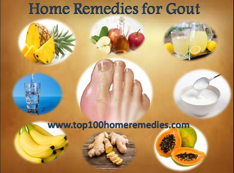 Other home remedies for gout