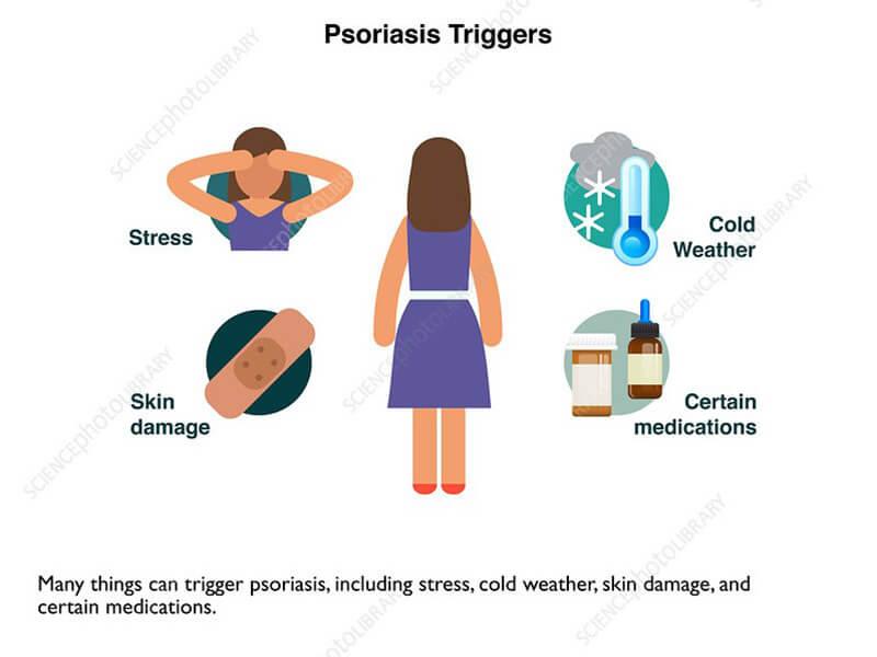 Psoriasis triggers