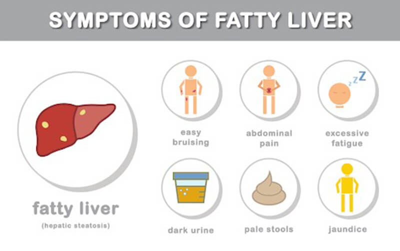 Signs and Symptoms of Fatty Liver Disease