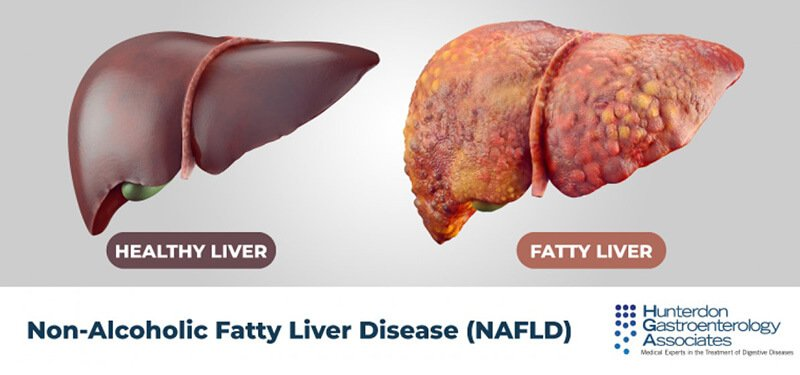 What can be a fatty liver disease