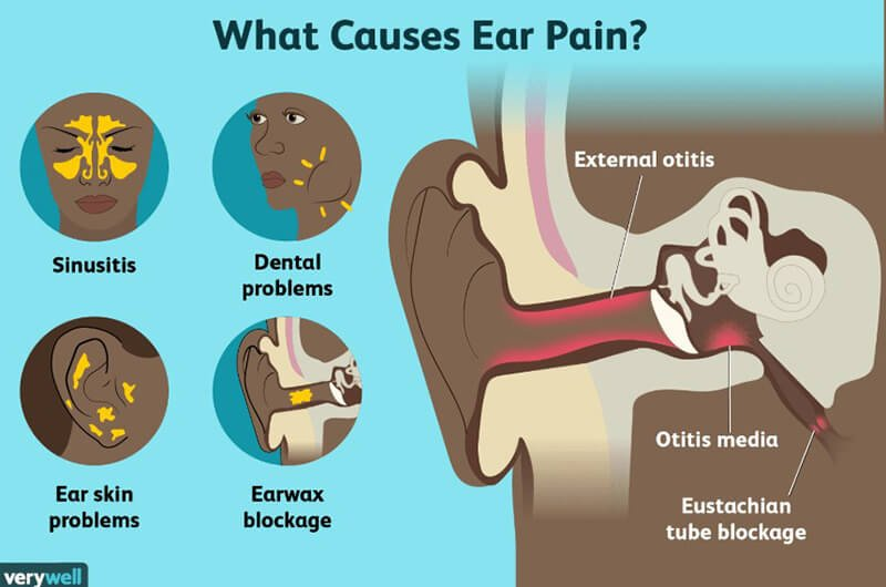 What causes ear infections (1)