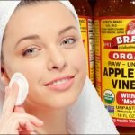 Can You Use Apple Cider Vinegar For Acne
