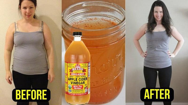 Apple Cider Vinegar for Belly Fat