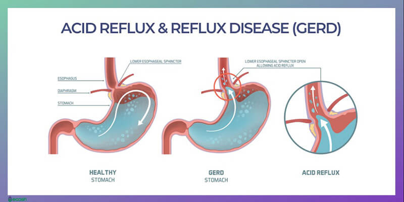 Other home remedies for acid reflux