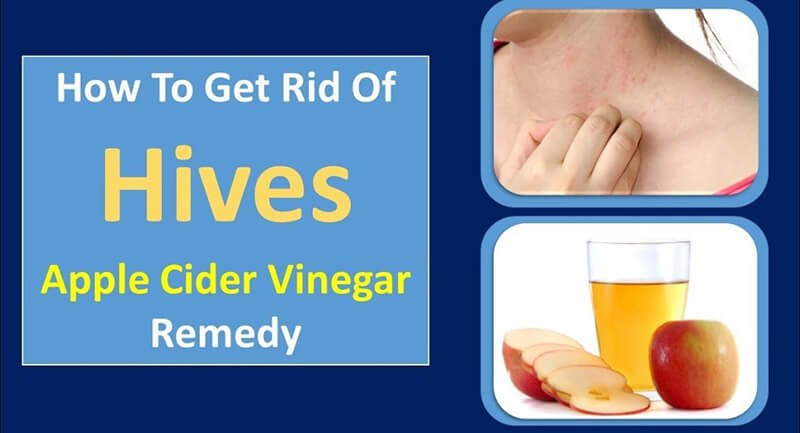 How To Use Apple Cider Vinegar For Hives?
