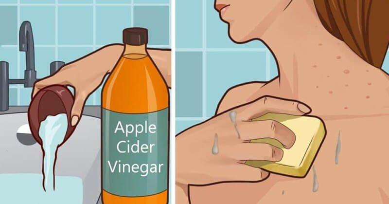 Caution when drinking apple cider vinegar