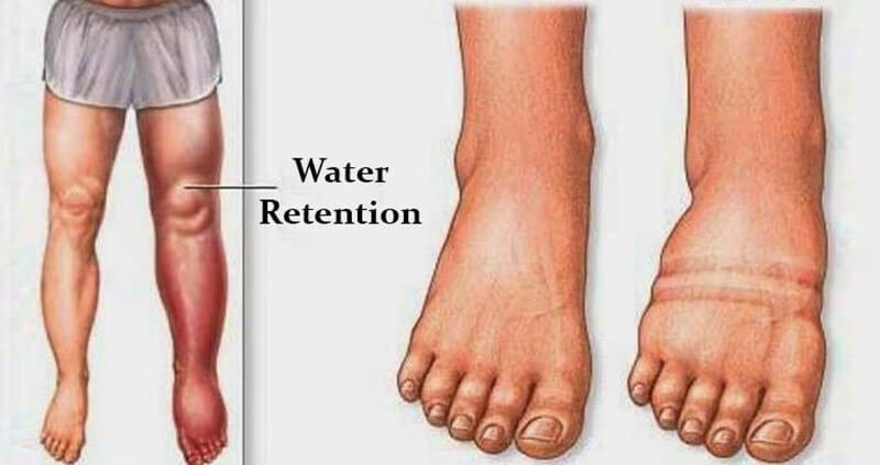 What is water retention