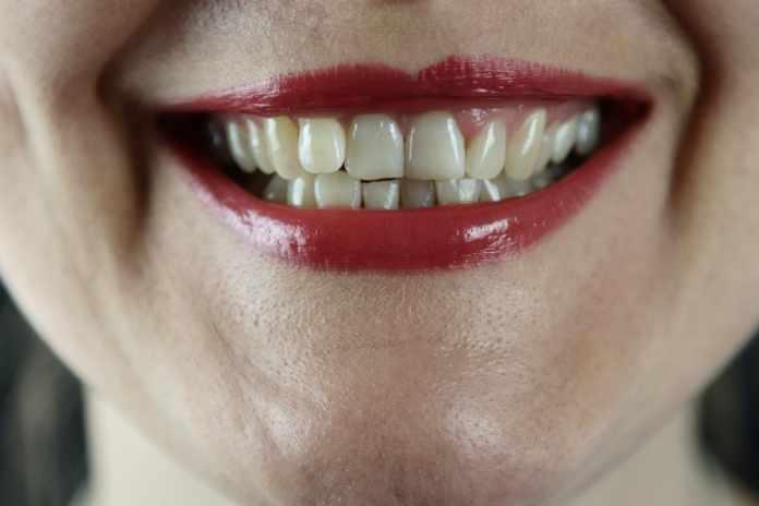 Turmeric Whiten Teeth