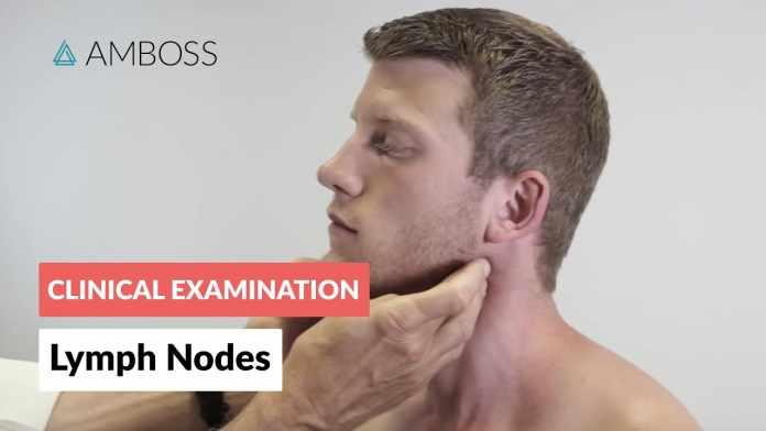 Swollen Lymph Node In Neck
