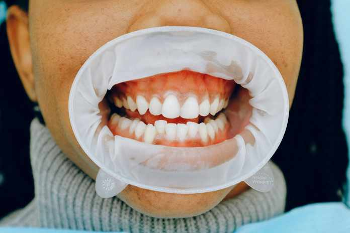 Gum Diseases May Also Be an Outcome of the New Wave of Covid 19